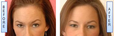 Botox injections for forehead lines and Glabellar wrinkles can last for 4 to 6 months